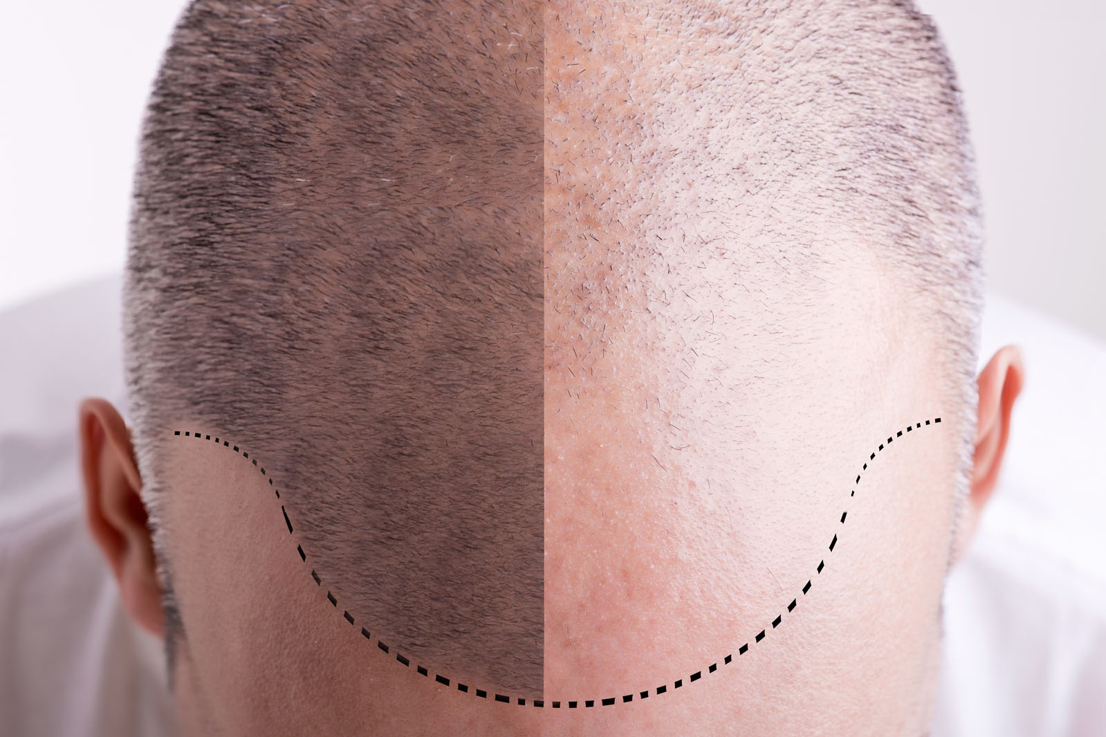 Pèrdua de cabell
