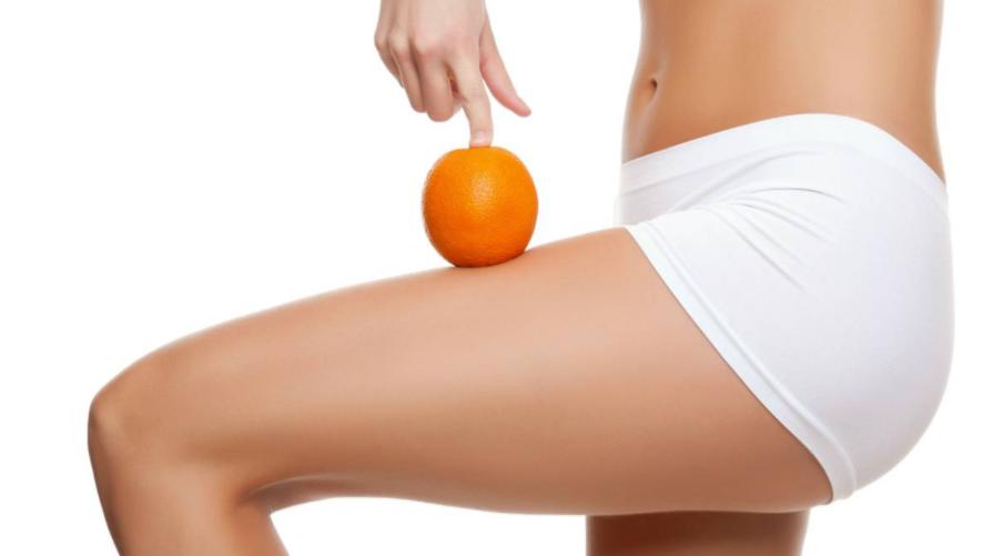 Cel.lulitis i la pell de taronja