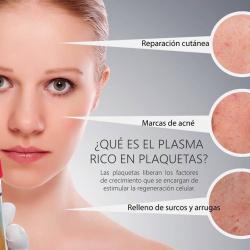 El Plasma Rico en Plaquetas, PRP, de moda entre las famosas.