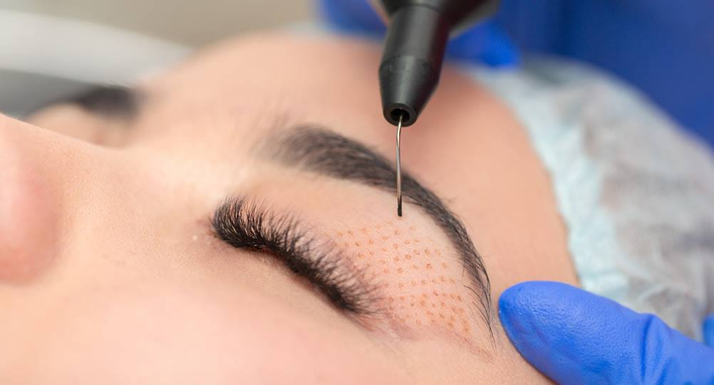 Jett Plasma Lift: Rejuvenece tu rostro y elimina imperfecciones con la tecnología plasma más eficaz