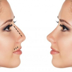 Rinomodelación: esculpe la nariz sin cirugía