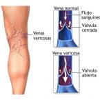 Insuficiència venosa crònica o problemes circulatoris a les cames.