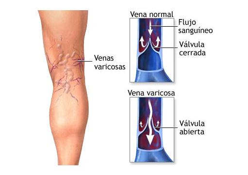 Insuficiencia venosa crónica o problemas circulatorios en las piernas.