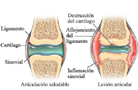 artritis, líquido sinovial, cartílago, inflamación articular, articulación