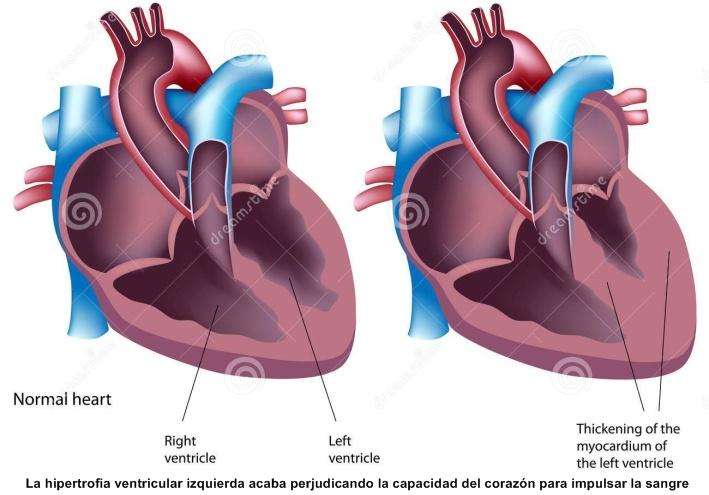 La medición de la presión arterial sistólica se puede realizar por