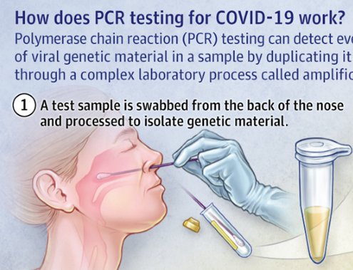 PCR Test para la detección del Coronavirus SARS-COV-2