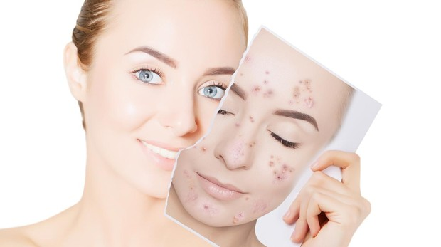 Tips per controlar l'acne