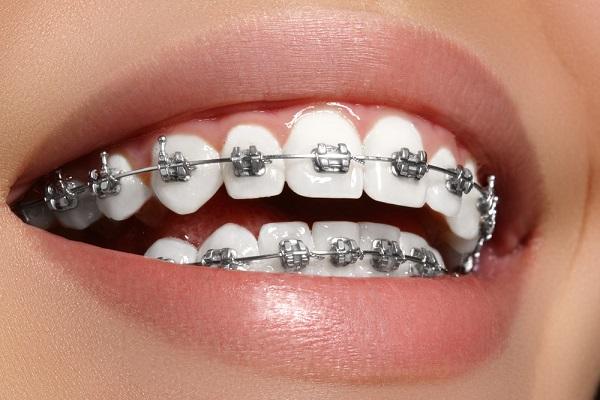 Consejos de salud, higiene y alimentación para la ortodoncia