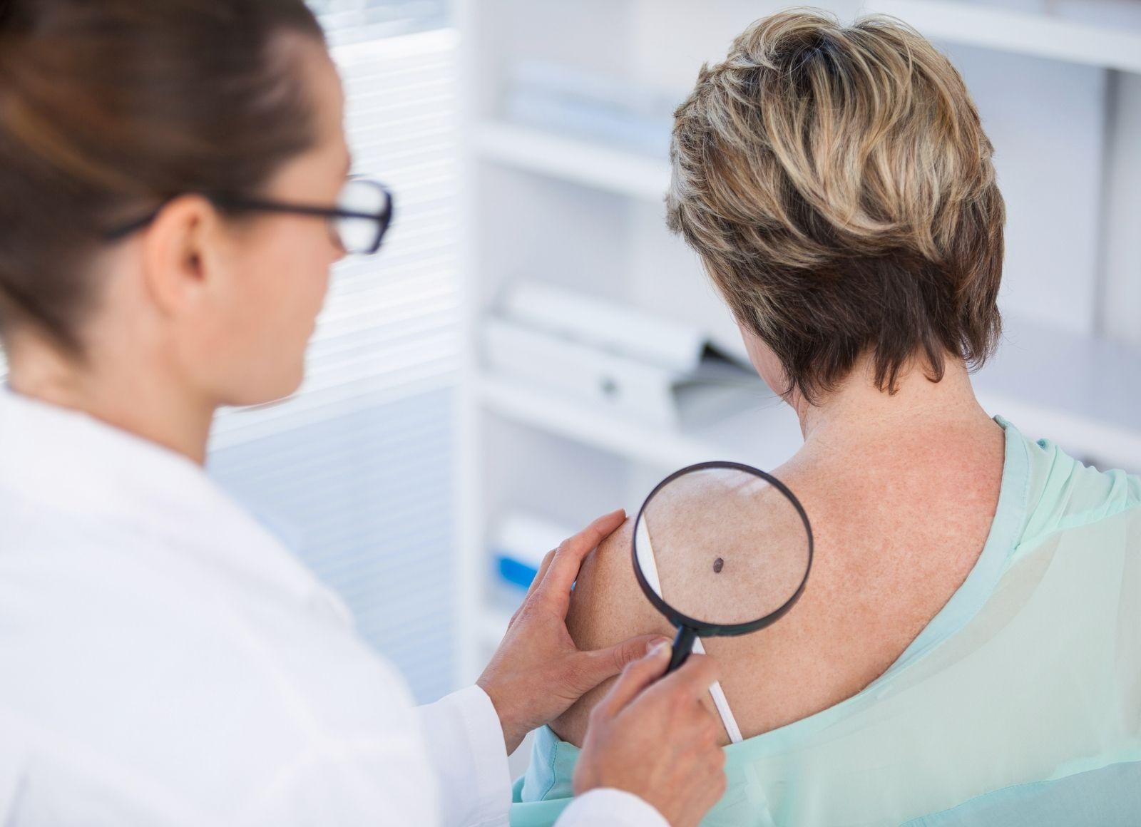 Melanoma ¿Por qué es importante prevenirlo?