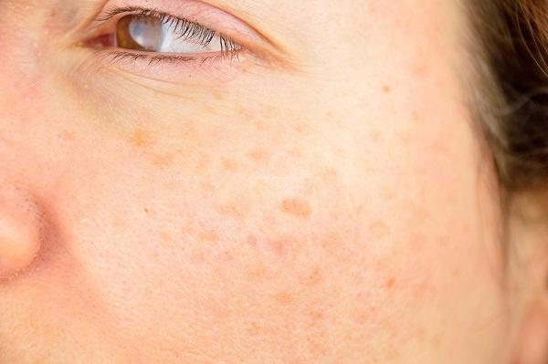 ¿Por qué se producen las manchas solares en la piel?