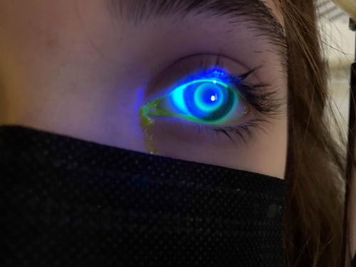 Imagen del ojo de la paciente de Orto-K durante el proceso de adaptación