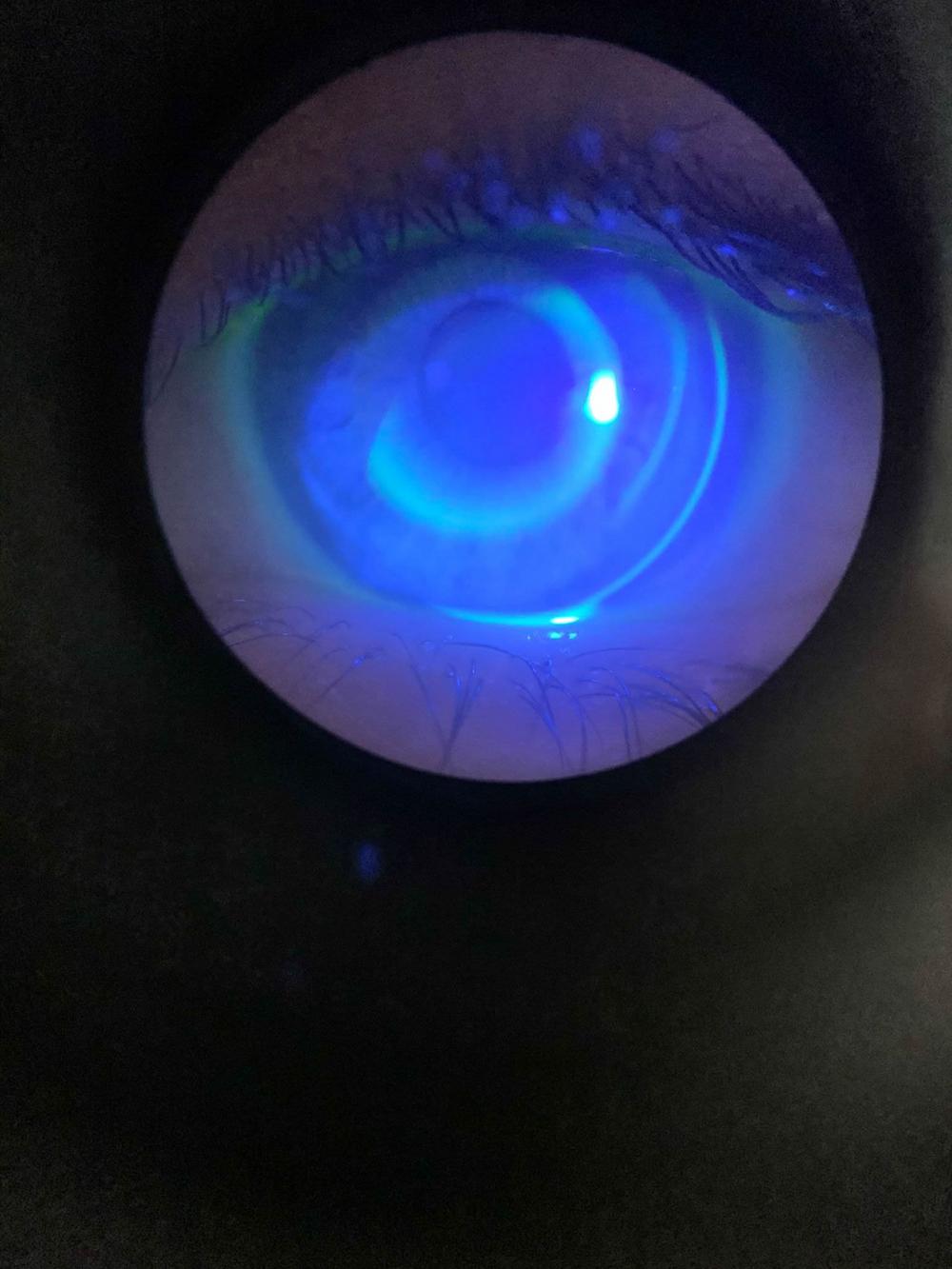 Imagen del ojo de la paciente durante el proceso de adaptación de las lentillas orto-k